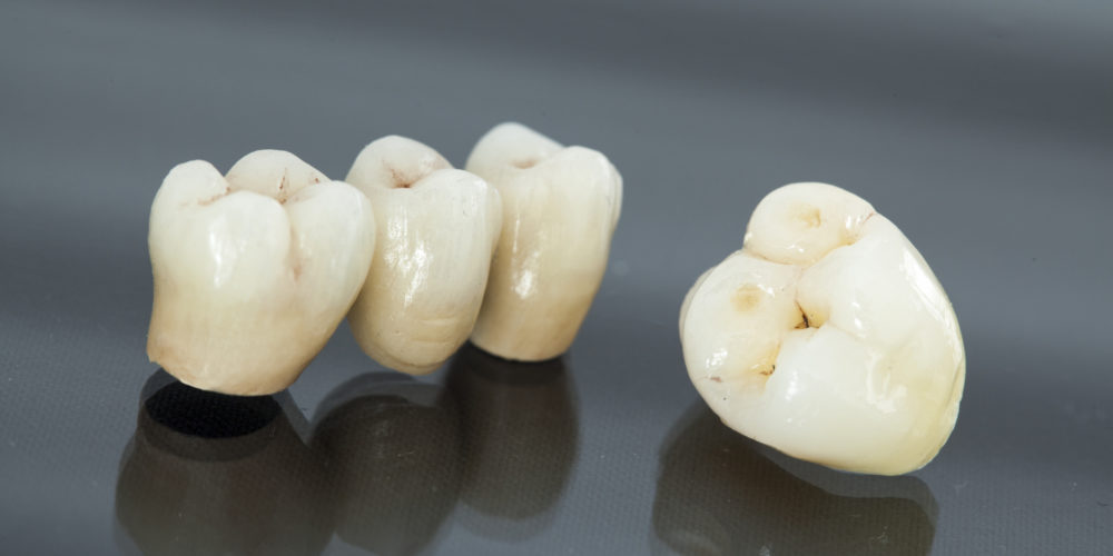Emergency Dental Crowns